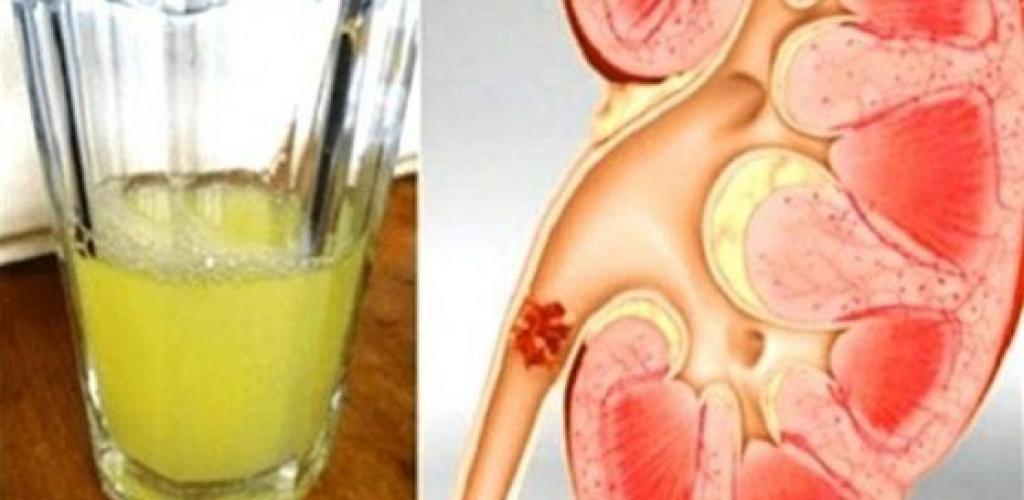 علاج حصوة المثانة بالأعشاب