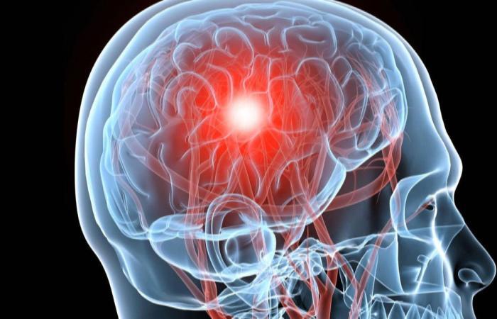 التهاب الدماغ.. الأسباب وطرق العلاج