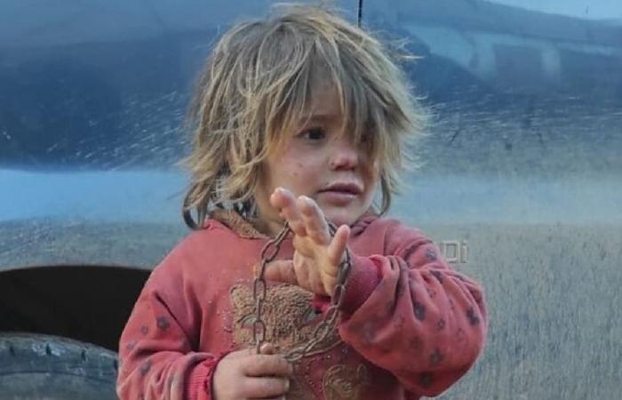 صورة طفلة سورية مكبلة بالسلاسل تهز العالم.. هل قتلها والدها جوعًا؟